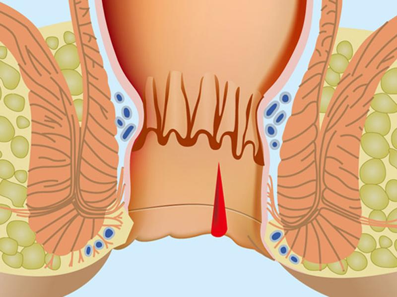 Quali candele da emorroidi è possibile a gravidanza nel primo trimestre di gravidanza